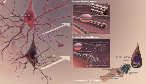 Comparação neurônios